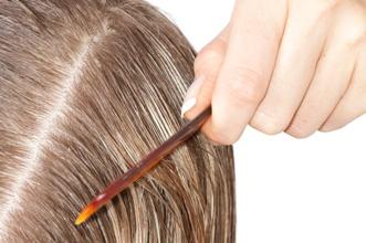 mastná vlasová pokožka