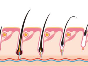 nemoci vlasů
