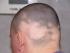 trvalé padání vlasů