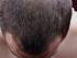 Vypadávání vlasů a ekzém