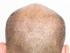 řídké vlasy