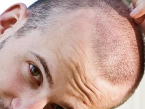 Moderní transplantace vlasů