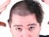 Podporuje stříhání růst vlasů