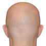 přípravky na padání vlasů pleš