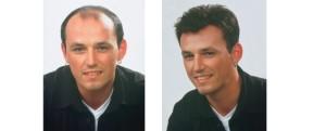 transplantace vlasů a integrace vlasů