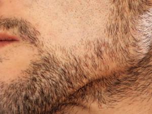 šediny ve vousech