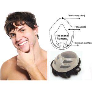 vlasový systém náhrady vlasů