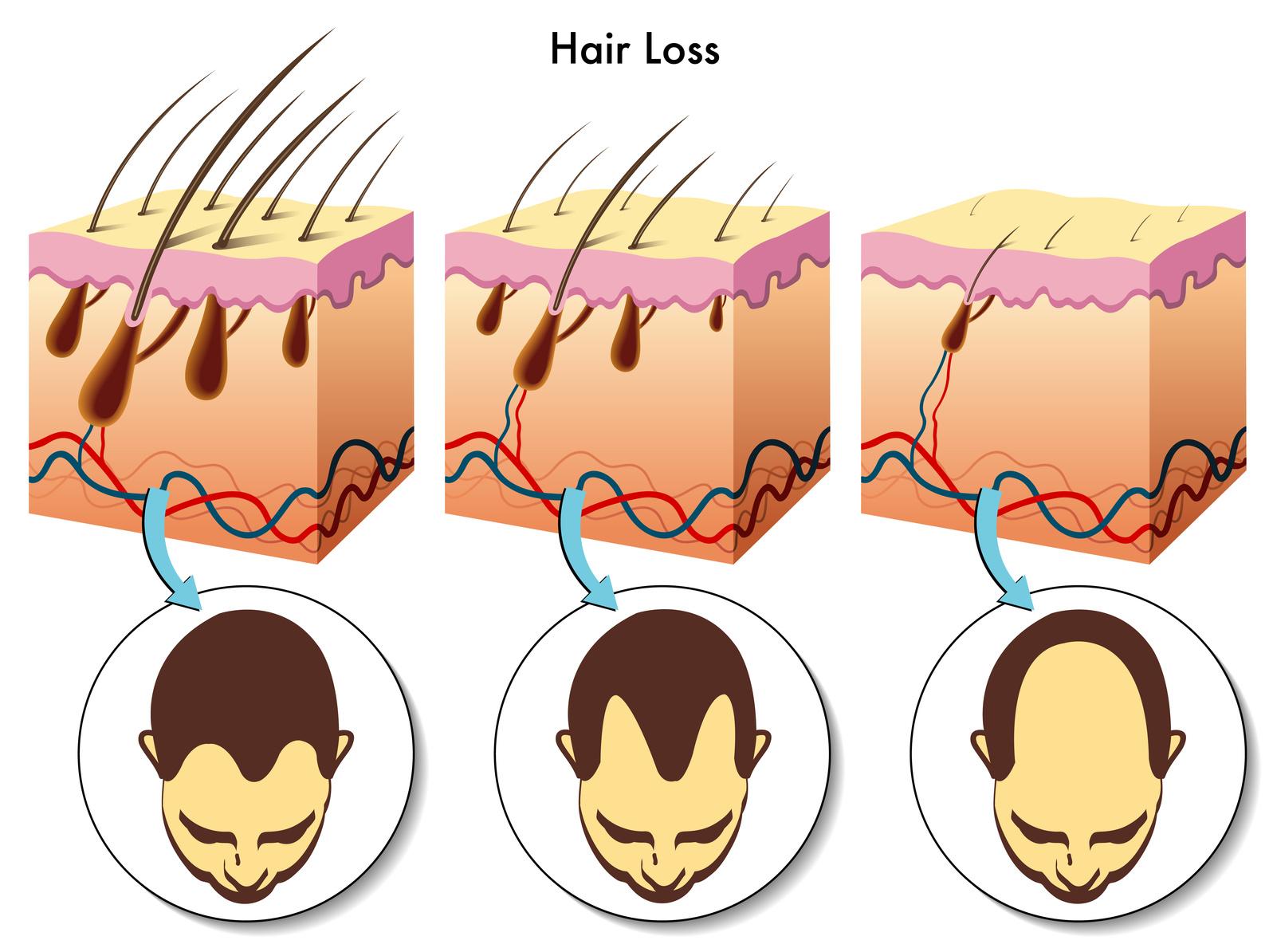 Fakta o vypadávání vlasů. Co můžeme změnit?