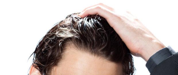 náhrada vlasů a integrace vlasů
